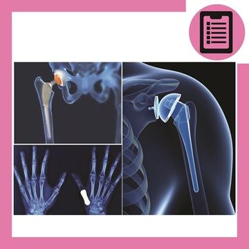 تصویر از استخوان و پروتزهای استخوانی